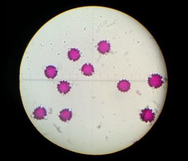 Dyed pollen grains under a microscope